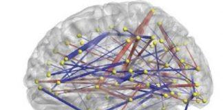 El análisis de las conexiones cerebrales permite predicir si un bebé padece TEA - UNC