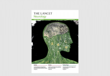 The Lancet of Neurology - Feb 2018