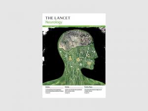 The Lancet of Neurology - Feb 2018