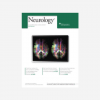 Parental family history of dementia in relation to subclinical brain disease and dementia risk