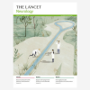 Evaluation of the safety, tolerability, and efficacy of pimavanserin versus placebo in patients with Alzheimer's disease psychosis: a phase 2, randomised, placebo-controlled, double-blind study
