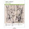 Portada The Lancet Neurology de Julio de 2021
